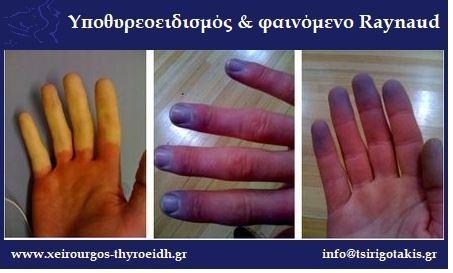 Υποθυρεοειδισμός και φαινόμενο Raynaud Σταύρος Τσιριγωτάκης