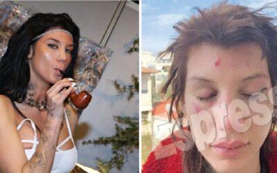Τρόμος για πρωταγωνίστρια ερωτικών ταινιών! 6 γυναίκες την απήγαγαν, την χτύπησαν και την κούρεψαν!