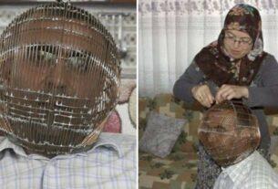 Τουρκία: Καπνιστής έβαλε το κεφάλι του σε κλουβί για να κόψει το τσιγάρο-photos